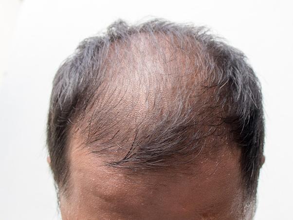https://www.kaunieciams.lt/wp-content/uploads/2018/11/plauku-retejimas-ne-tik-vyresniu-vyru-problema.jpg