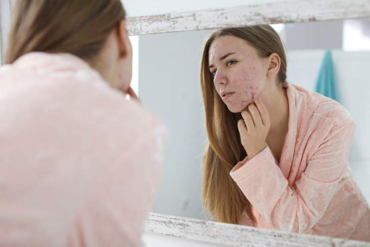 5-aknes-varginamos-odos-prieziuros-klaidos